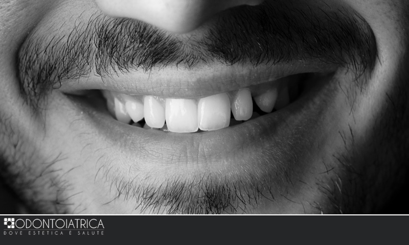 Esperti in estetica e cosmesi dentale, sbiancamento e faccette, Odontoiatrica Clinica dentale a Marcon e dentista a Mirano - Venezia